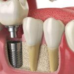 Современные стоматологические услуги и имплантация зубов